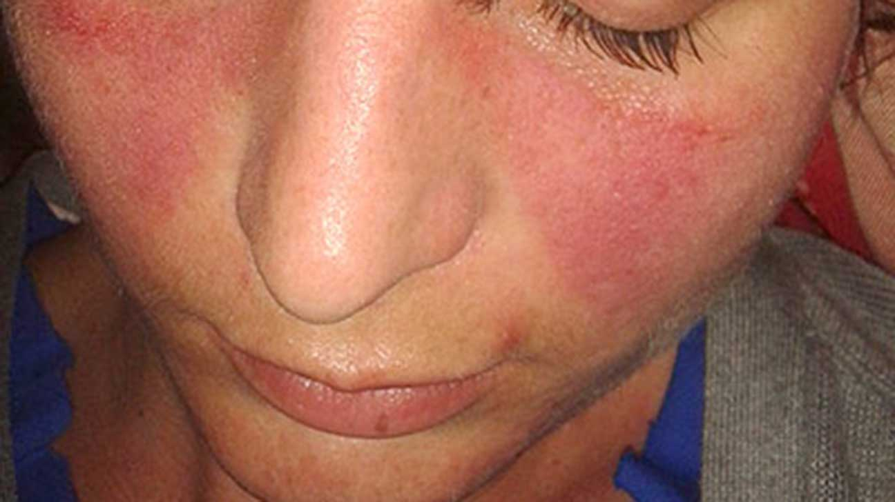 very itchy skin rash on face dry skin rash